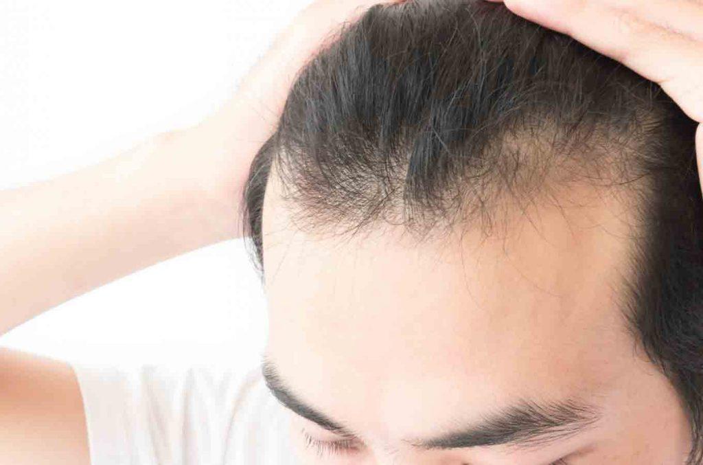 Best Hair Regrowth Pills