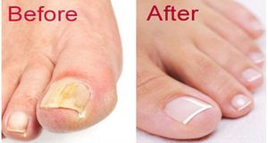 nail fungus before after